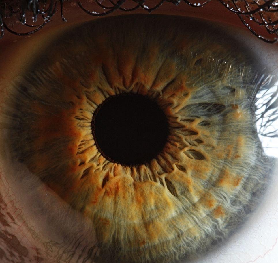 "Photo of حدقة العين تعكس ""يقينك بالقرارات"".. اقرأ لتعرف"