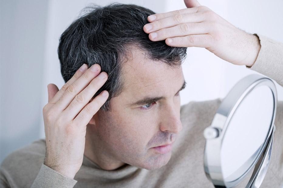 Photo of علماء يكتشفون مادة آمنة تُحفّز نمو الشعر