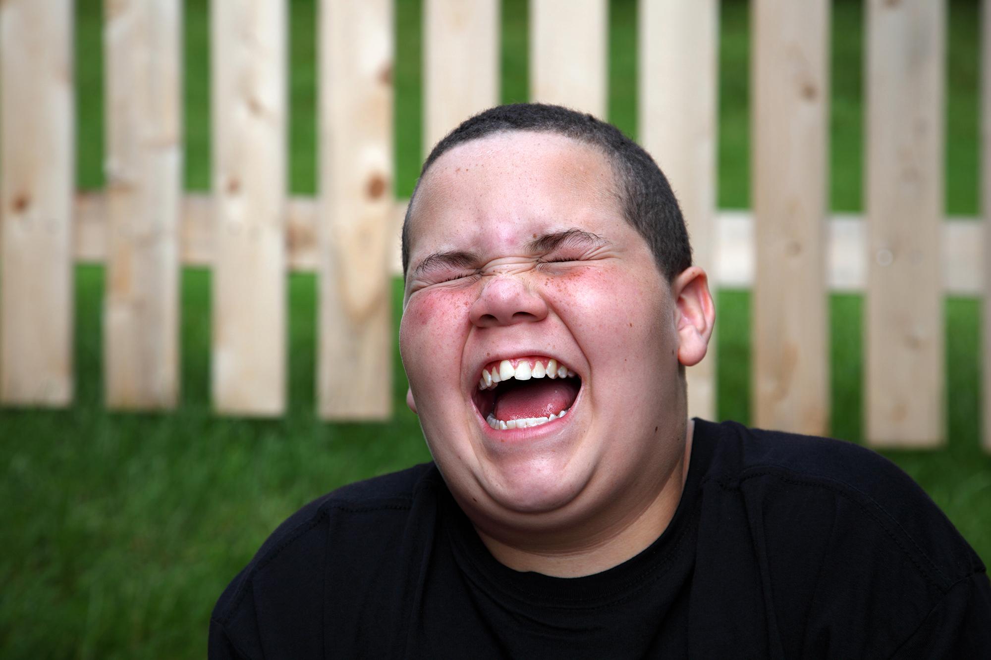 """Photo of """"مرض"""" خطير.. من أعراضه """"الضحك"""" بهستيريا"""
