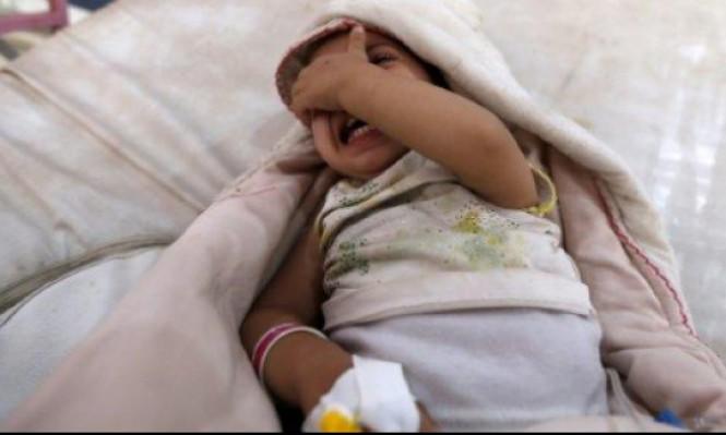 طفل مصاب بالكوليرا في صنعاء (أ ف ب)