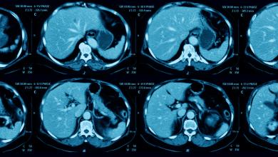 علاج الأورام
