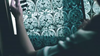 Photo of باحثون يطورون جهازا يُحسن ذاكرة مرضى الزهايمر