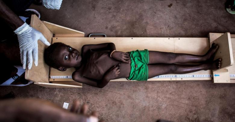 ويقاس الطفل في عيادة تعالج حالات سوء التغذية الحاد في تشيكابا