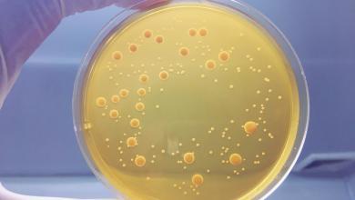 Photo of تحذير من انتشار بكتيريا قوية مقاومة للأدوية