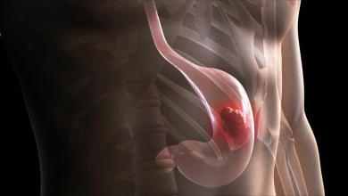 Photo of ما علاقة أمراض اللثة باحتمال الإصابة بسرطان المعدة؟
