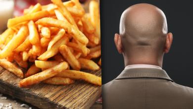 صورة اعرف العلاقة بين الصلع والبطاطا المقلية