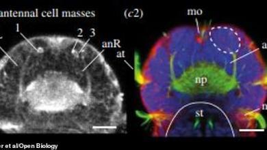Photo of تعرّف على أصغر مخ في العالم