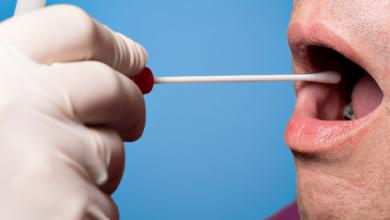 Photo of الكشف المبكر عن الإصابة بالزهايمر عن طريق تحليل اللعاب