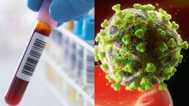 """Photo of العلم يقترب من إيجاد علاج للـ""""إيدز"""""""