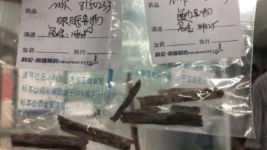 Photo of قطع خشبية تمكث في دماغ صيني 5 سنوات