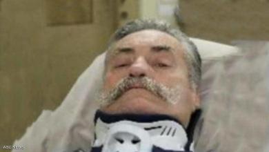 "Photo of ""عقاب قاسٍ"" لرجل حاول قتل زوجته السابقة"