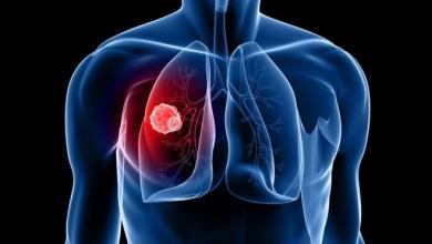 Photo of دراسة تكشف أهم مؤشر على الإصابة بسرطان الرئة