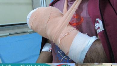 صورة 23 حالة إصابة في طرابلس بسبب الألعاب النارية