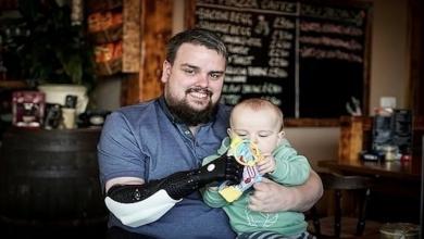 صورة التكنولوجيا تتدخل وتُغيّر حياة بريطاني مبتور اليد