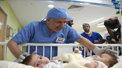 صورة آخر التطورات الصحية للتوأم السيامي بعد العملية الجراحية