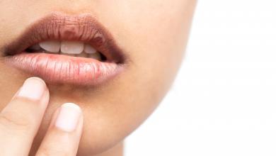 صورة اختبار مدته 10 دقائق يكشف سرطان الفم والبلعوم