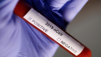 Photo of تدشين اختبار دقيق لاكتشاف فيروس كورونا