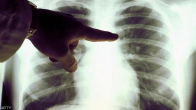 """Photo of """"تقدم هام"""" في محاربة سرطان الثدي"""