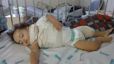 Photo of مادة لاصقة تحرق طفلا بريطانيا