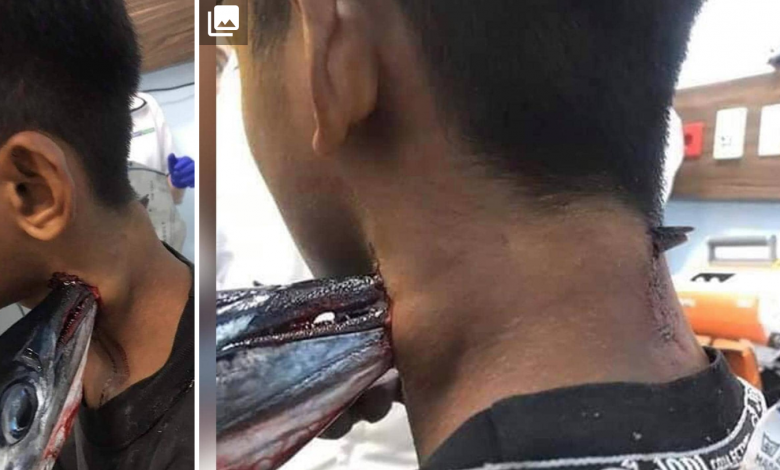 "Photo of مراهق إندونيسي يتعرض لهجوم دموي من ""سمكة"""
