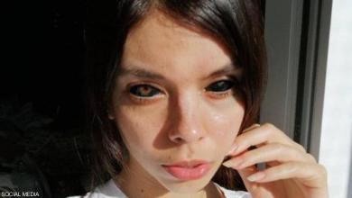 Photo of بولندية مُهدّدة بالعمى بسبب تقليدها لمطرب مشهور