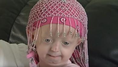 """صورة """"الطفلة المُسنّة"""" تستسلم للمرض.. وتغمض عينيها"""