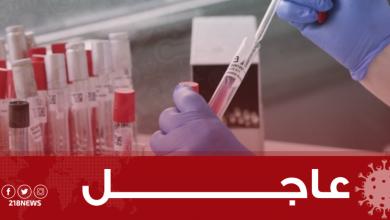Photo of المركز الوطني: نتائج التحليل لـ 9 حالات اشتباه في ليبيا أظهرت خلوها من فيروس كورونا