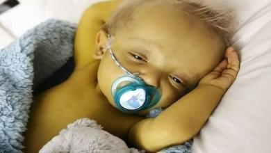 """صورة متلازمة نادرة تصبغ بشرة طفل بريطاني بـ""""الأصفر"""""""