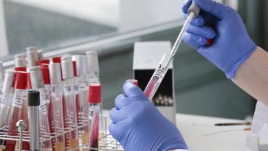 Photo of معهد الطب الحيوي السويسري يشارك في عمليات تطوير علاج لفيروس كورونا