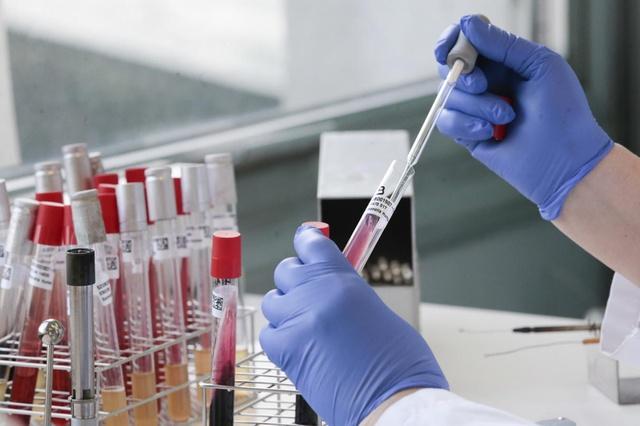 معهد الطب الحيوي السويسري يشارك في عمليات تطوير علاج كورونا