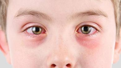 """صورة """"نتائج كارثية"""" تجعلك تتنبه لاحمرار العين"""