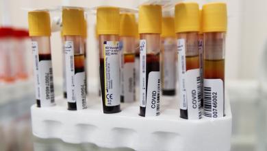 Photo of إجمالي الإصابات بفيروس كورونا في ليبيا  256 حالة