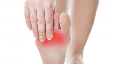 صورة أبرز أسباب تورم القدمين وما لا تعرفينه عن طرق العلاج