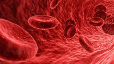 صورة أهم أعراض تسمم الدم لدى الأطفال والبالغين