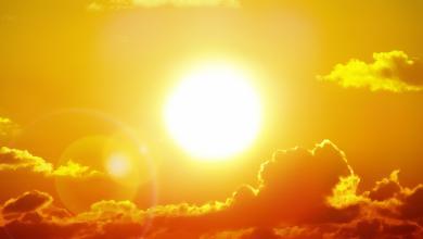 صورة 3 مناطق تؤذيها أشعة الشمس عندما لا تضعين عليها كريم وقاية