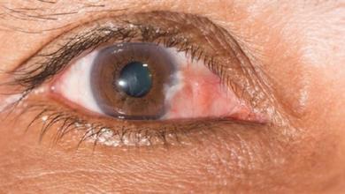 صورة البقع العمياء بالعين دليل على مرض ليس له علاج