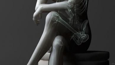 صورة لصحتك.. تجنب الجلوس بقدمين متشابكتين لفترة طويلة