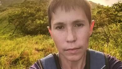 صورة ثلاثيني بشكل طفل بسبب حالة مرضية نادرة (صور)
