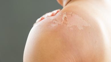 صورة هل تعانين من الجلد المتقشر؟ الحل في هذه المكونات المنزلية