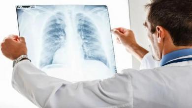صورة كورونا يزيد وفيات مرضى سرطان الرئة