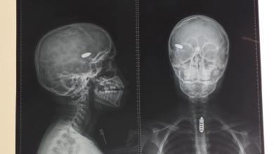 صورة مقطعية تظهر الرصاصة التي تم اخراجها من رأس الطفل